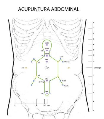Acupuntura abdominal.jpg