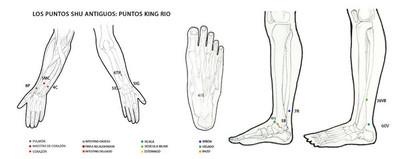 Puntos King.jpg