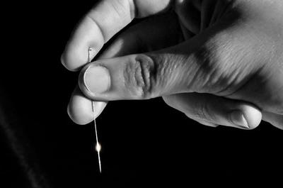Tcnicas de acupuntura.jpg